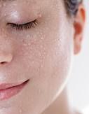 Distúrbios dermatológicos relacionados às questões emocionais.